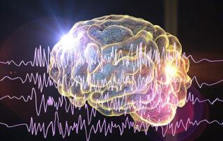 Epilepsy Management